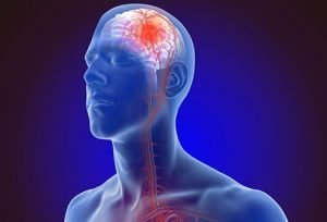 morning walk prevents stroke image
