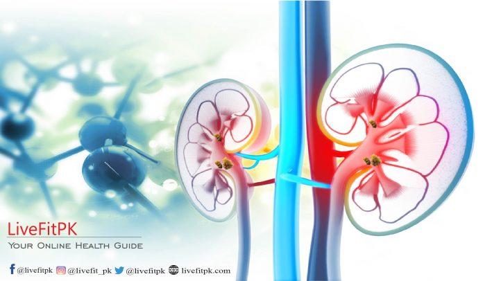 kidney stones banner