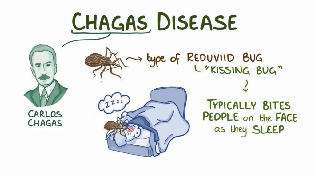 chagas disese image