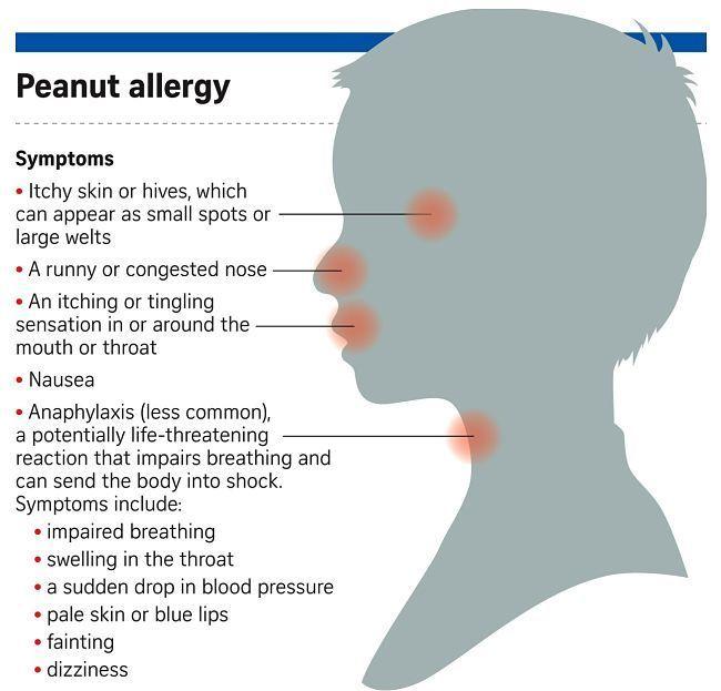 symptoms of peanut allergy image