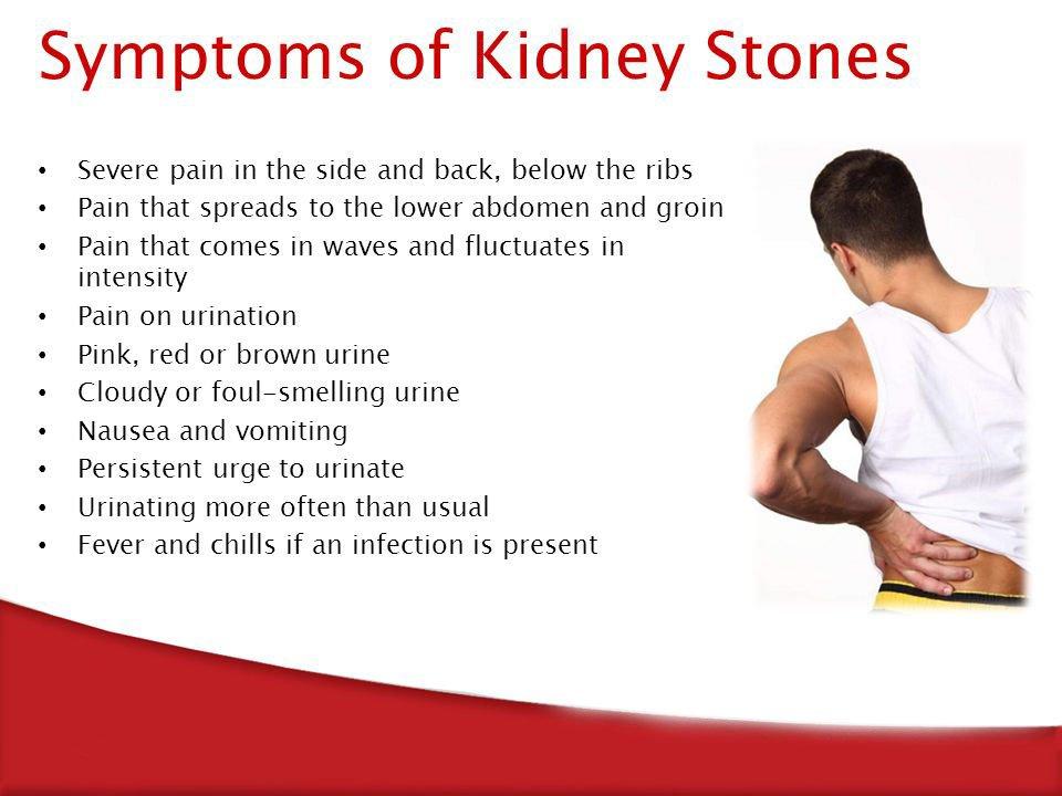 kidney stone symptom image