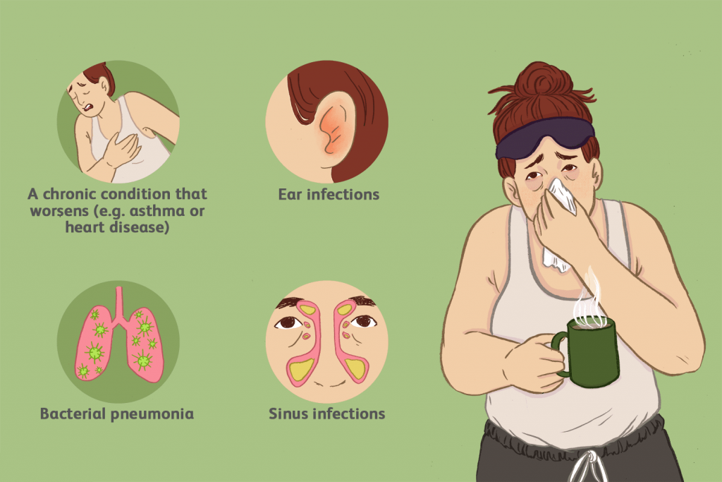 influenza flu complications image