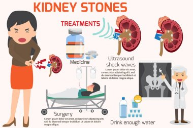 kidney stone treatment image
